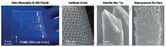 Figure 2: Photograph of a representative Si NN-patch (left) and magnified images of the tips and the nanoporous surface.
